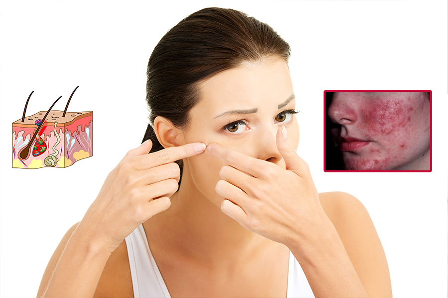 akne-rozasea-tedavisi-foto